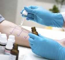 Global Antigen Skin Test Market